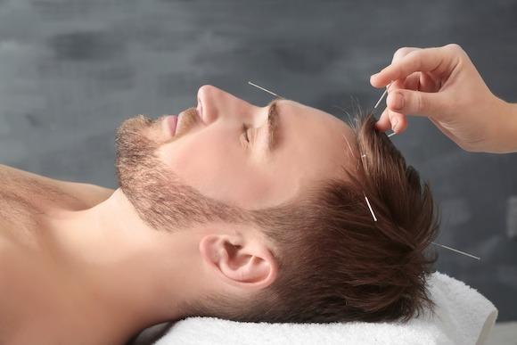 L'acupuncture - une médecine ancestrale au service de notre santé