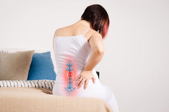 Des solutions naturelles pour soulager les douleurs au coccyx