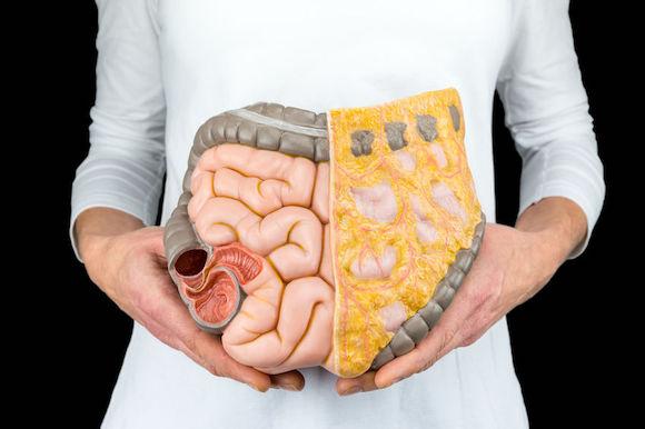 Brûlures d'estomac : l'ostéopathe pour éteindre le feu naturellement